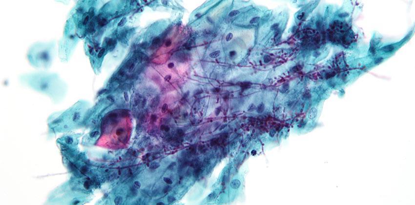 Μυκητιάσεις/Βαλανοποσθίτιδα