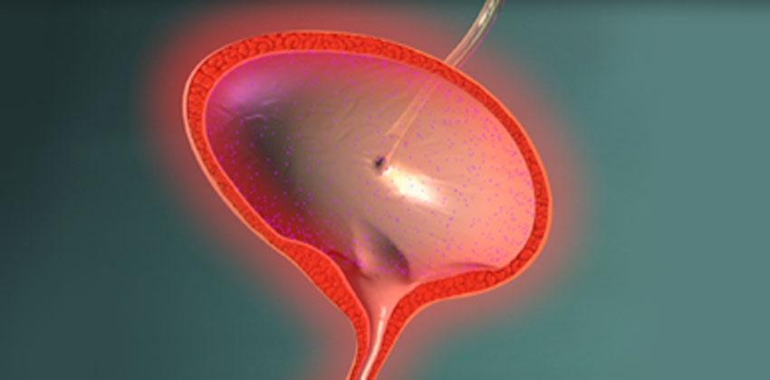 Ουρολοιμώξεις (Κυστίτιδα, Πυελονεφρίτιδα)