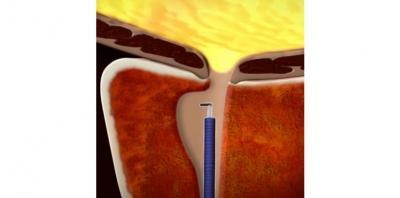 Διουρηθρική προστατεκτομή Κλασική - TURIS - Laser